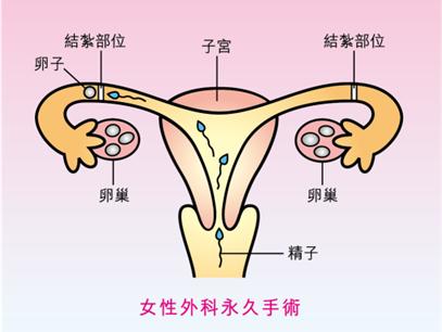 避孕方法-輸卵管結紮手術
